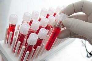 Si es posible, le recomendamos que antes de tomar un vuelo tenga sus análisis de sangre validados por un laboratorio (Especialmente para determinar si usted sufre de anemia).