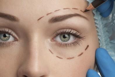 Blefaroplastía (Cirugía de Párpados)