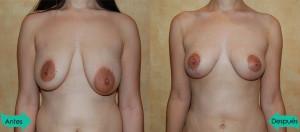 Carolina Hidalgo Reducción mamaria