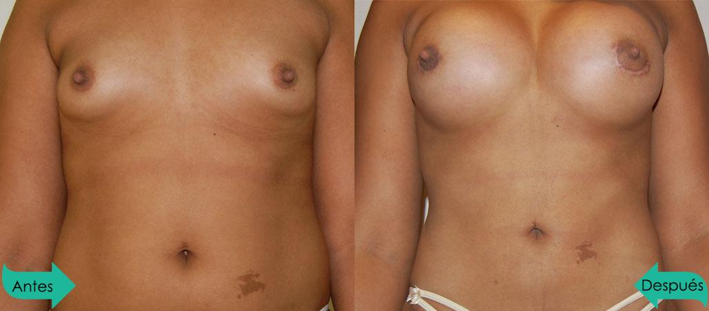Mamoplastía de Aumento