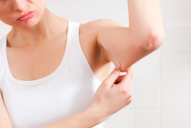 Braquiplastía (Cirugía de los brazos)
