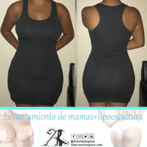 despues abdomen+lipo