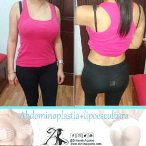 despues abdomen+lipo3